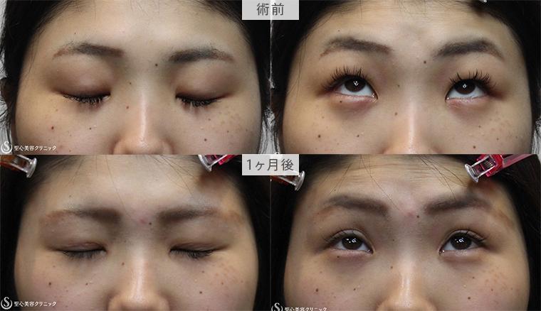 切開式重瞼術、目頭切開