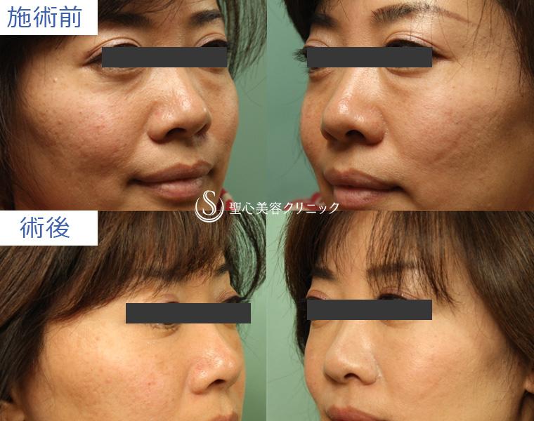 プレミアムPRP皮膚再生療法+経結膜下脱脂の症例写真