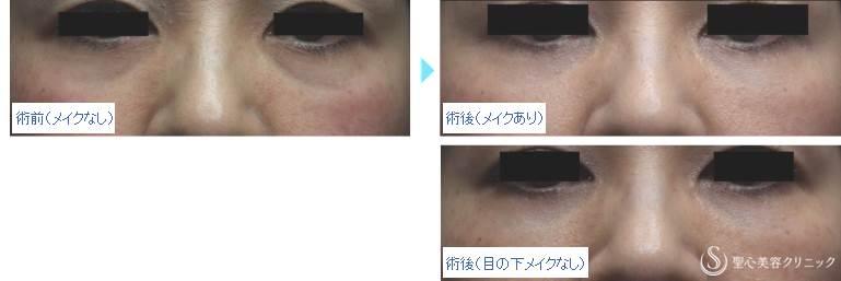 症例写真 メイク写真比較 目のくま・くぼみ・たるみ・眼瞼下垂