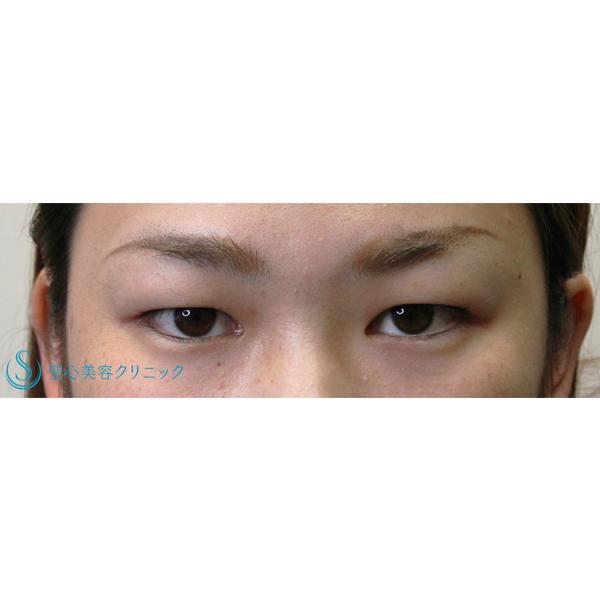 涙 袋 腫れ 片目