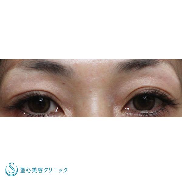 症例写真 術後 目のくま・くぼみ・たるみ・眼瞼下垂