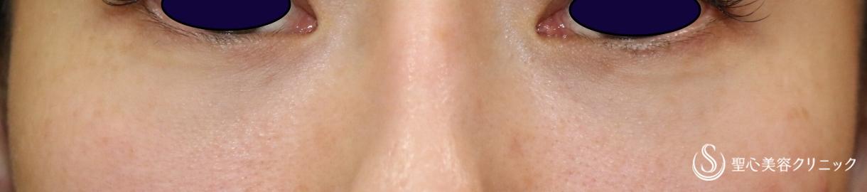 症例写真 術後 経結膜下脱脂術+プレミアムPRP皮膚再生療法