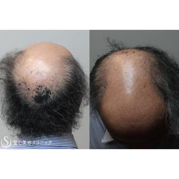 症例写真 術前 毛髪再生療法