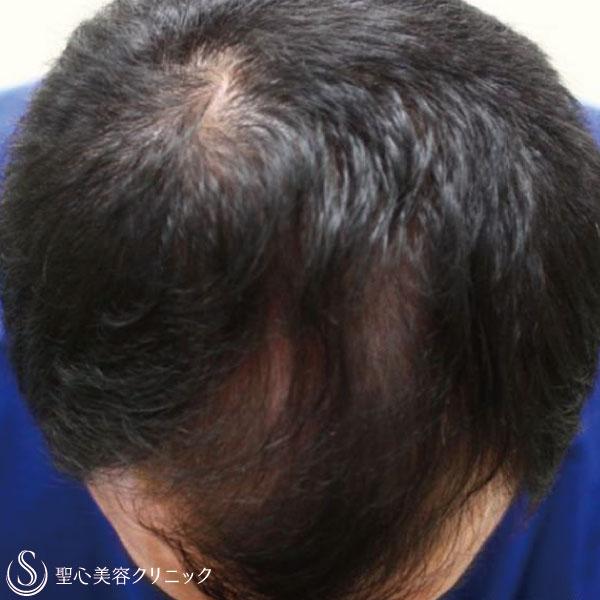 症例写真 術後 毛髪再生療法