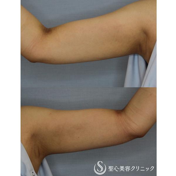症例写真 術後 脂肪吸引
