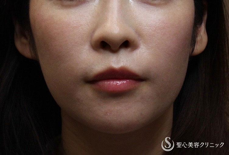 症例写真 術後 プレミアムPRP皮膚再生療法+ウルセラシステム