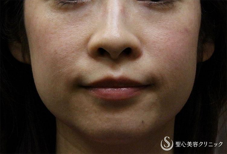 症例写真 術前 プレミアムPRP皮膚再生療法+ウルセラシステム