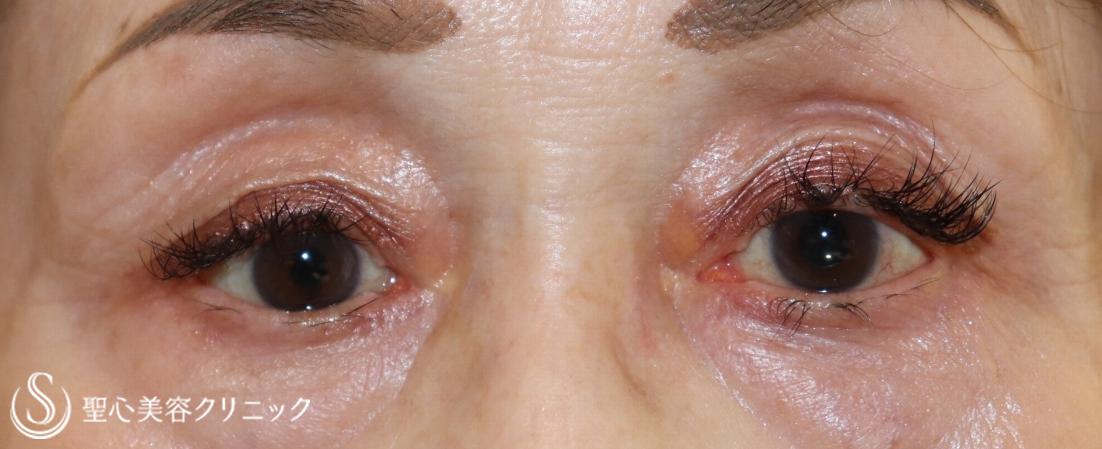眼瞼下垂(埋没法)