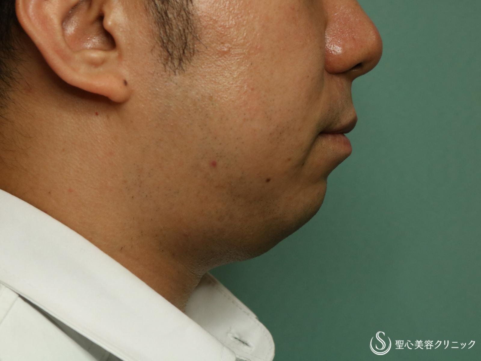 症例写真 術前 脂肪溶解注射FatX+ヒアルロン酸