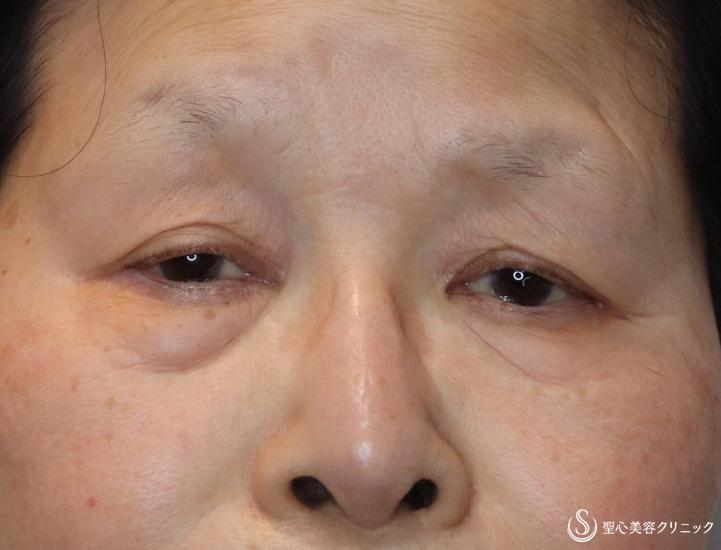 症例写真 術前 眼瞼下垂(切開法/腱膜縫縮法)+眉下切開法